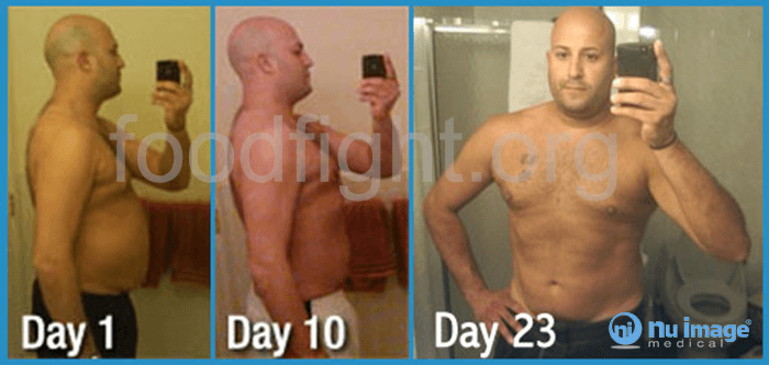 Results from using Nu Image Medical